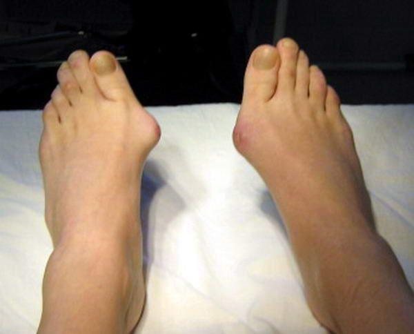 Как сделать чтобы не росла нога